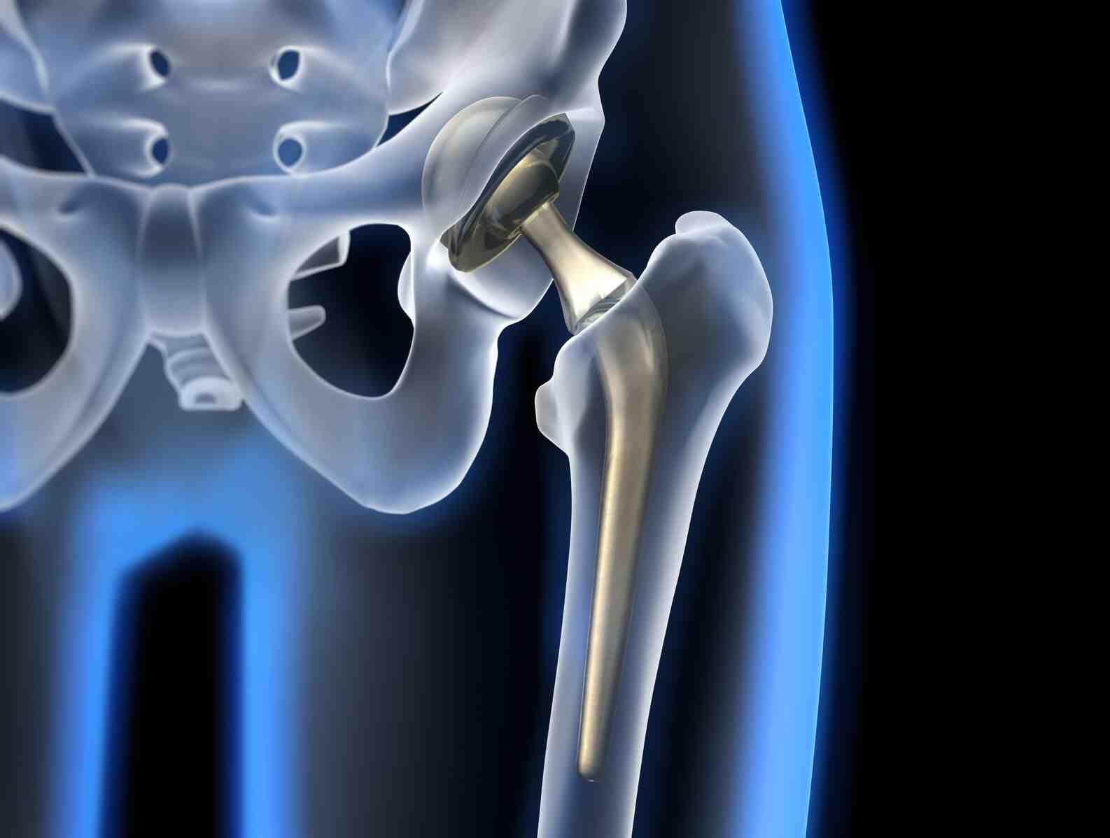 Comment bougez-vous vos hanches?
